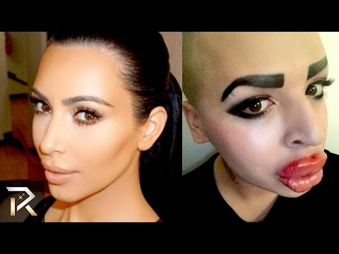 10 Horrible Plastic Surgery Impersonations