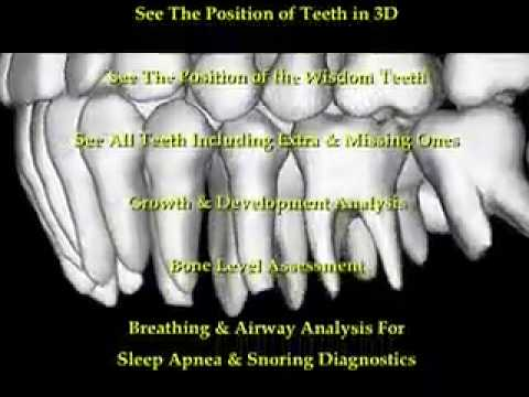 3D Orthodontic CBCT Scan powered by Anatomage.com