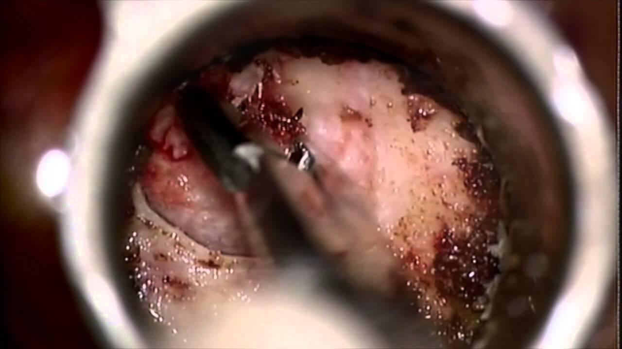 micro endoscopic cervical discectomy