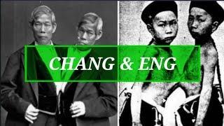 Kembar Siam Pertama Di Dunia, Nikahi Kakak Beradik dan Memiliki 21 Anak