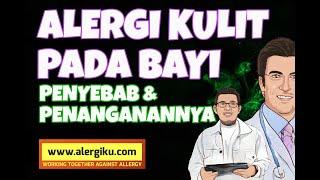 Tanda Dan Gejala Alergi Kulit Pada Bayi