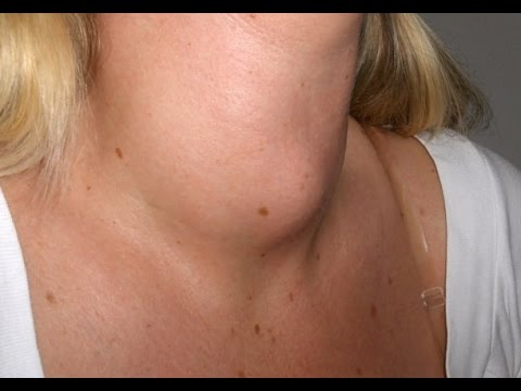 Home Remedies To Treat Goiter Naturally