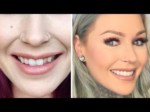NEW TEETH: Veneers & How I Transformed My Teeth   KristenLeanneStyle