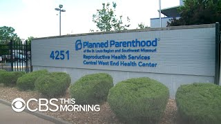 Missouri's last abortion clinic defies state's pelvic exam requirement