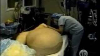 Repeat youtube video Woman has a 300 Pound Tumour removed from her Stomach