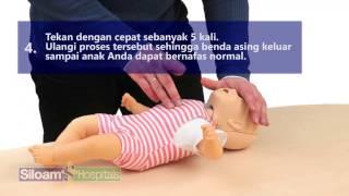 Langkah Penanganan Bayi Tersedak