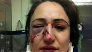 Polizeigewalt Deutschland - Teresa Z wird von einem Polizisten geprügelt