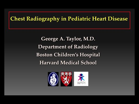 Congenital heart disease segmental classification essay