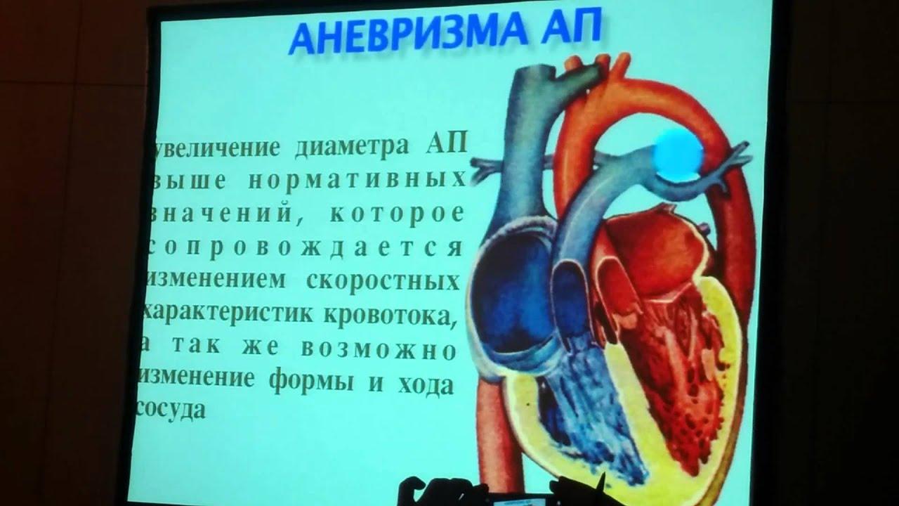 Проток Артериальный