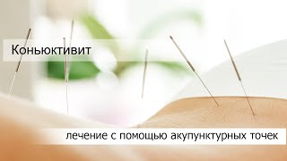 Коньюктивит