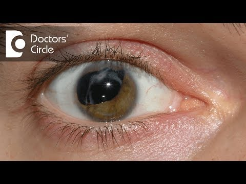 What are the causes of Cataracts? - Dr. Ajanta Chakravarty