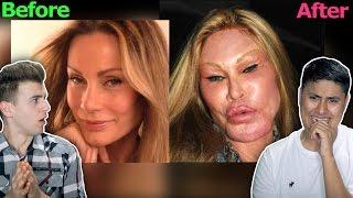 Worst Plastic Surgery Fails