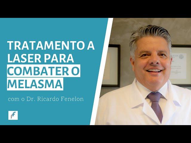 Tratamento a laser para combater o melasma