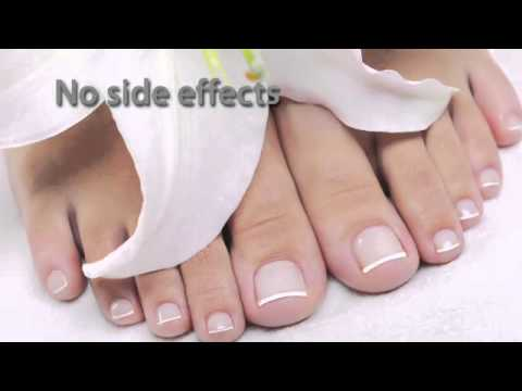 New Laser Treatment for Toenail Fungus – PinPointe Foot Laser