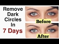 Remove Under Eye Dark Circles in 7 days