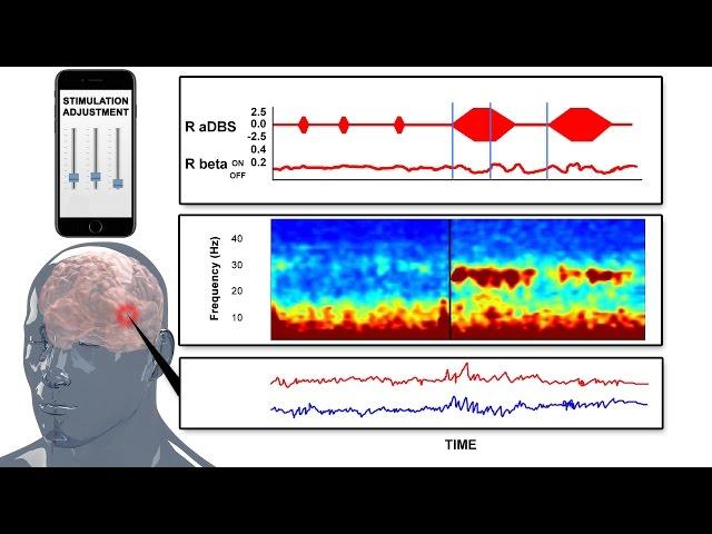 Nexeon MedSystems - Technology for Addressing Parkinson's Disease - 3D Medical Animation