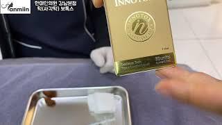 [강남피부과]사각턱 보톡스  턱보톡스 시술기!