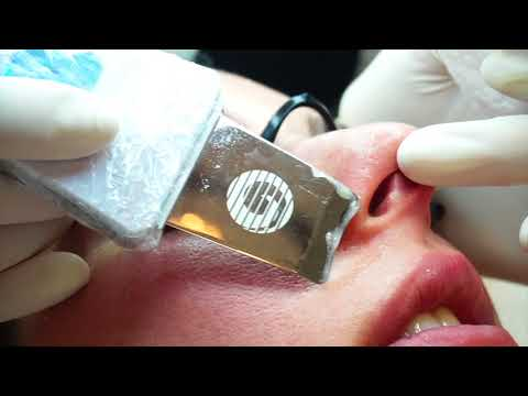 Ultrasonic Facial | The Best Way To Clean Your Pores