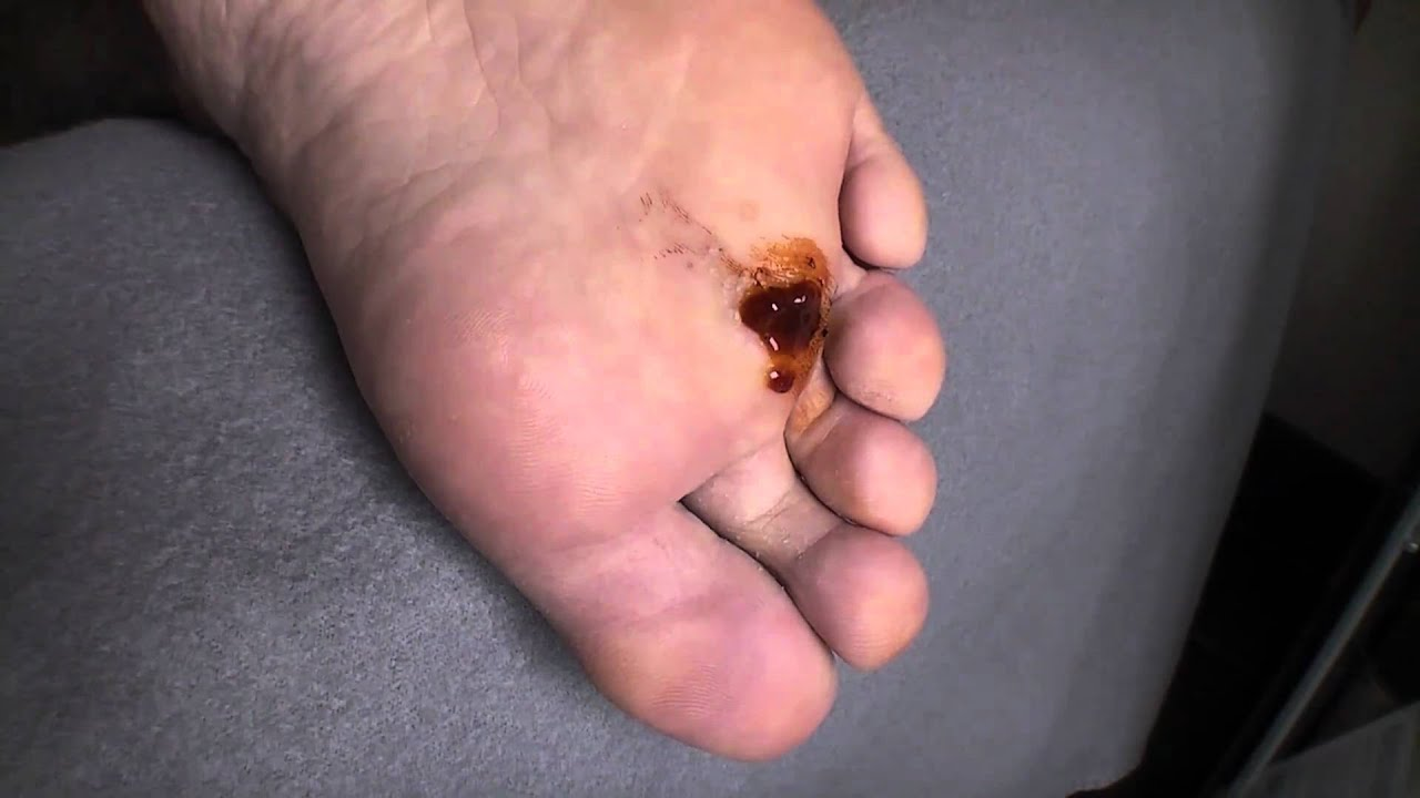 pictures of warts on feet #10