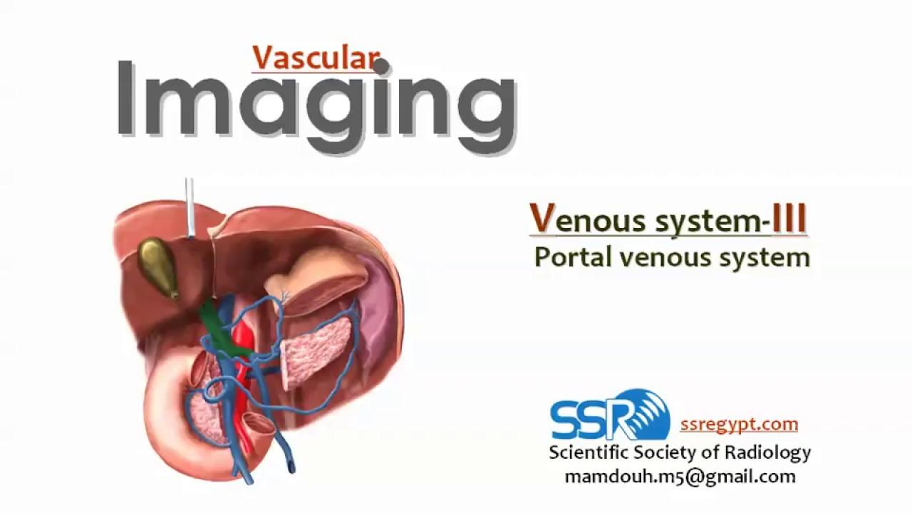Imaging Of Portal Venous System Prof Dr Mamdouh Mahfouz
