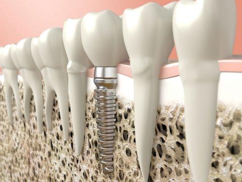 Проблемы при установке зубных имплантов. Школа здоровья. Gubernia TV