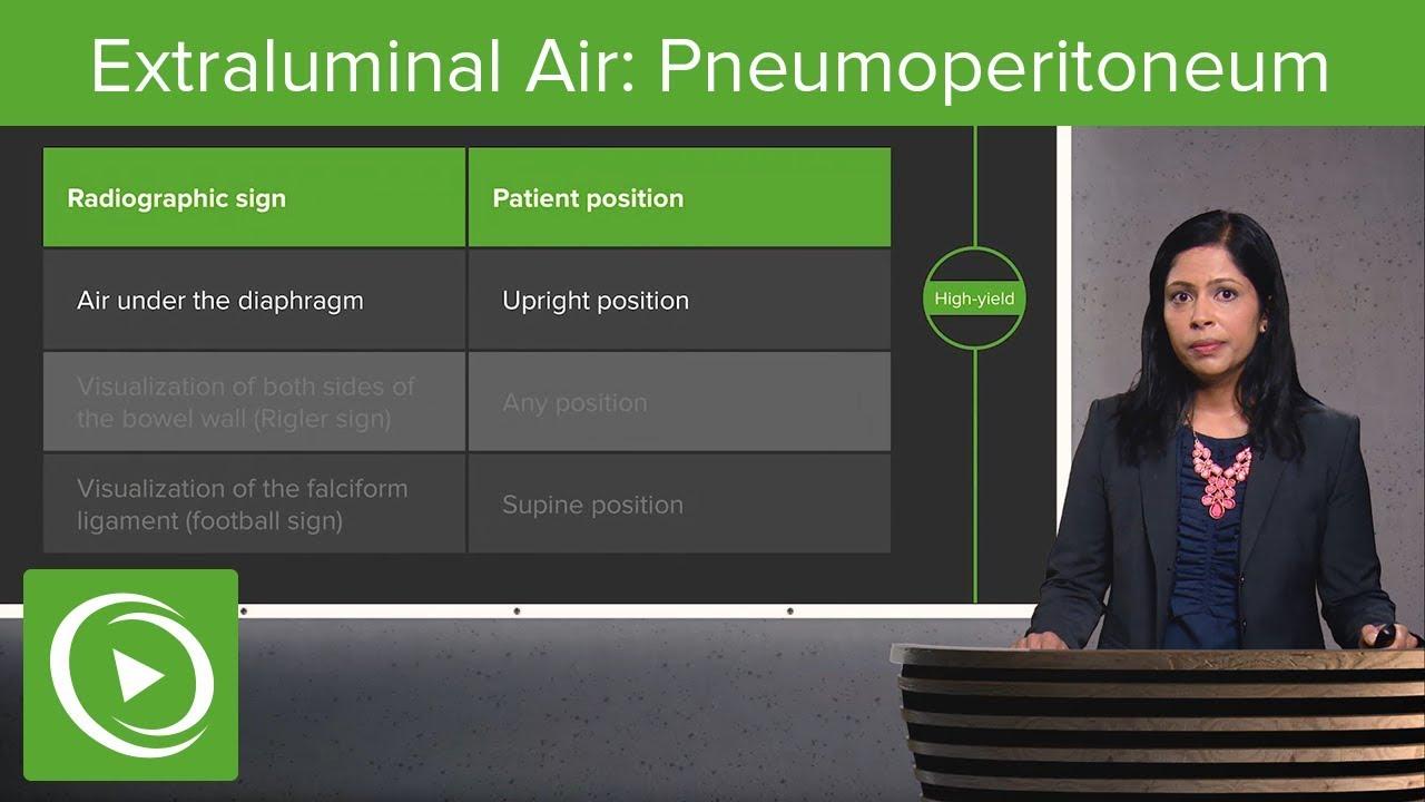Extraluminal Air: Pneumoperitoneum & Pneumoretroperitoneum – Radiology | Lecturio