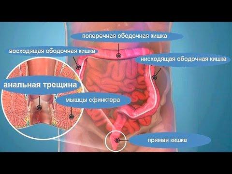 Анальная трещина - методы консервативного лечения!