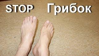 видео Лечение грибка ногтей чесноком