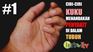 Video ini berisi tentang Penyebab Kulit Tangan Mengelupas Dan Cara Mengatasinya Kulit tangan mengelu.