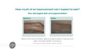 Genuine Dermaroller  at Zenith Cosmetic Clinics Thumbnail