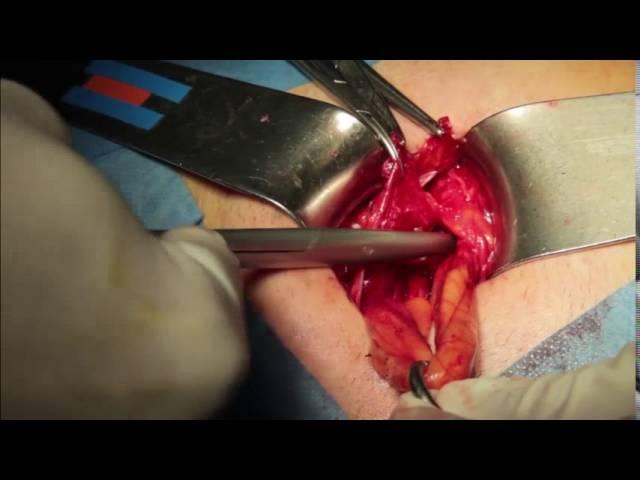All In One Hernioplasty - tecnica originale - Kit AG-01