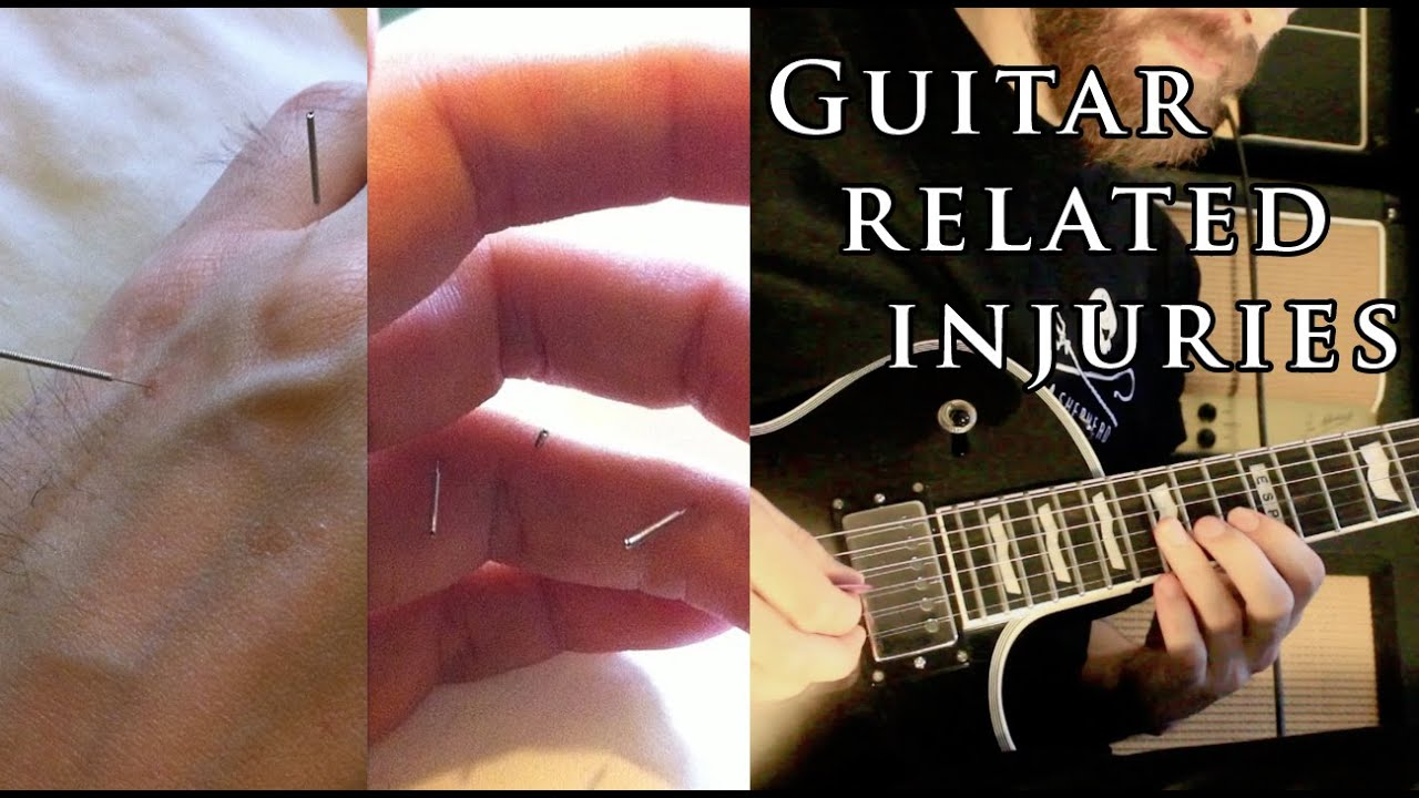 guitar related injuries rsi tendonitis ligament damage etc