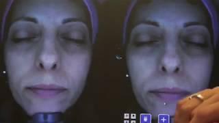 Dermacheck – косметологический аппарат для диагностики кожи лица
