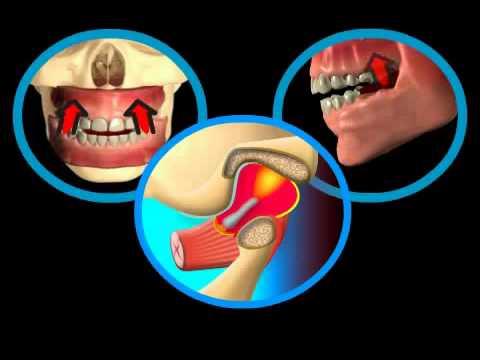 Болит челюсть снизу справа
