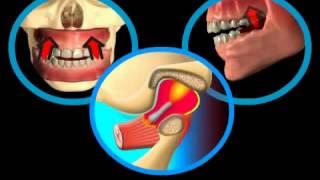 видео Воспаление после укола в десну