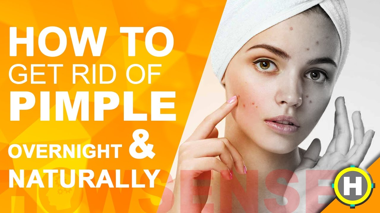 How to get rid of acne fast naturally opinion you