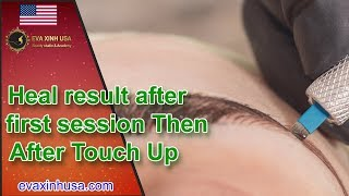 Baixar Heal result after first session Then After Touch Up | EVAXINH USA BEAUTY ACADEMY