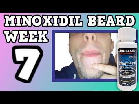 Minoxidil Beard | Week 7 | The Experiment |  #FacialFuzzFridays