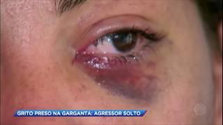 Mulher atacada pelo ex conta ao Cidade Alerta detalhes das agressões sofridas