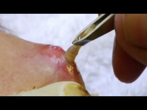 Top 5 Parasite Removals  Botfly