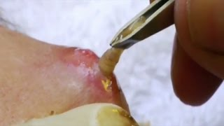 Repeat youtube video Top 5 Parasite Removals  Botfly