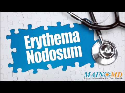 Erythema Nodosum ¦ Treatment and Symptoms