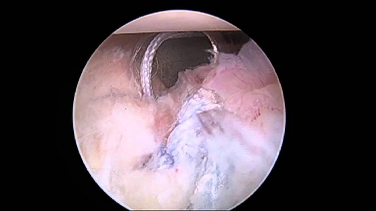 Massive Labral Tear -- Shoulder - YouTube
