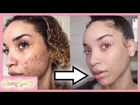 my-current-skincare-routine-+-accutane/acne-update!