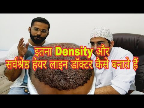 Why 40 Rs Per Graft For Best Hair Transplant Result? || Best Hair Transplant Clinic in MumbaiKaynak: YouTube · Süre: 10 dakika19 saniye