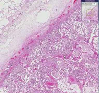 Histopathology Lung --Lobar pneumonia - YouTube