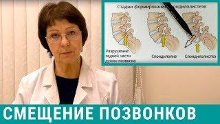 Смещение позвонков, спондилолистез поясничного отдела позвоночника - лечение