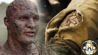 Greyscale Disease Explained | Game Of Thrones Season 7