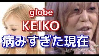 【衝撃】globeのKEIKOの現在。病み具合が見ていられない!
