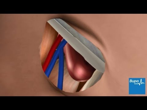 How open femoral hernia surgery is carried out - YouTube